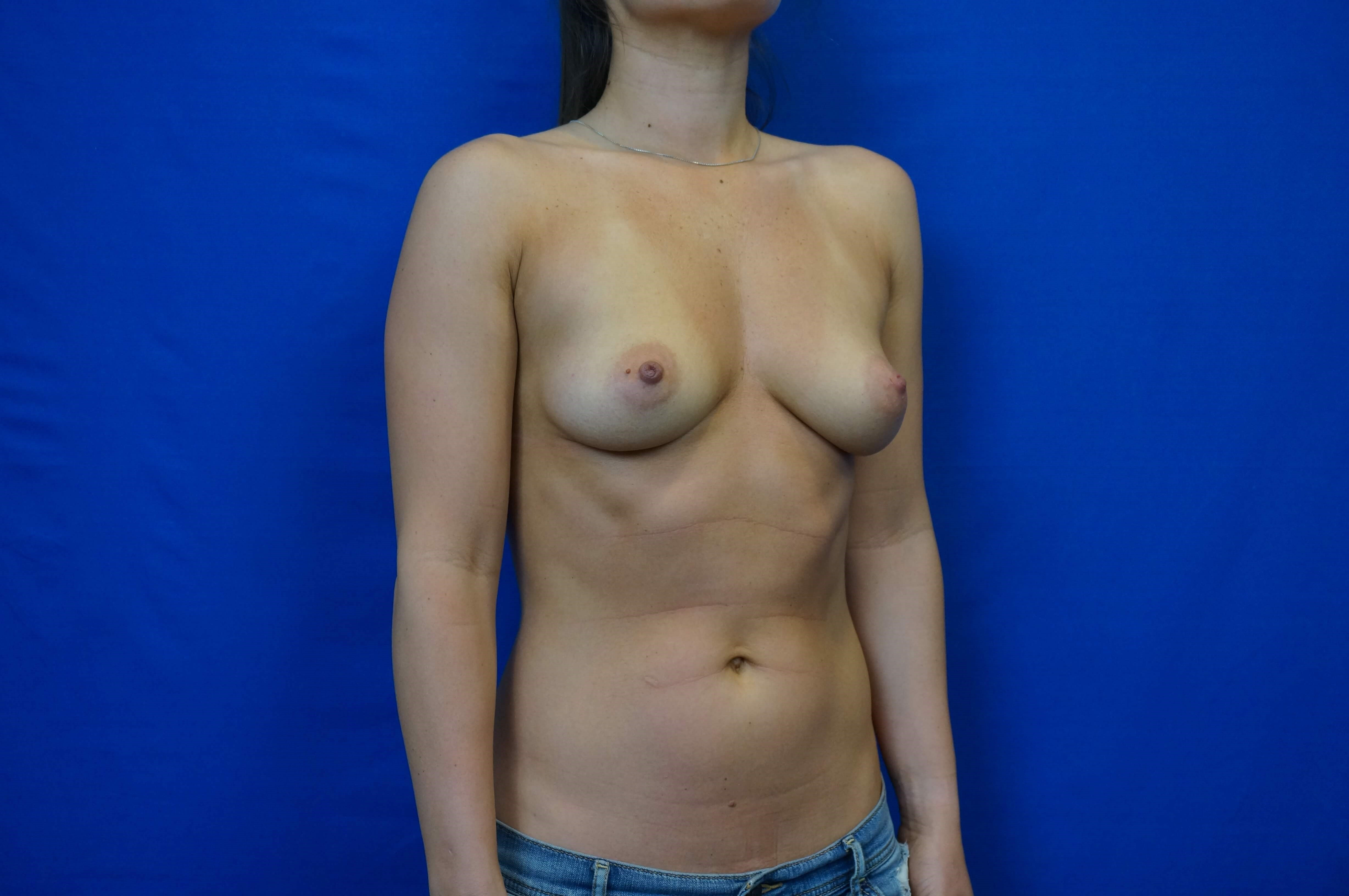 Three Quarters Breast Aug Before