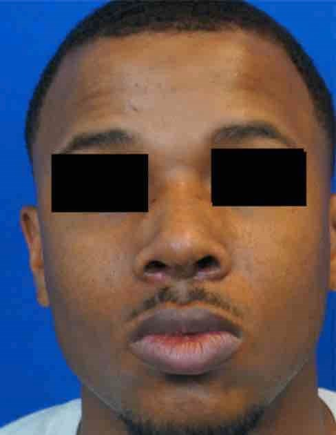 African American Rhinoplasty After