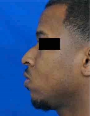 African American Rhinoplasty Before