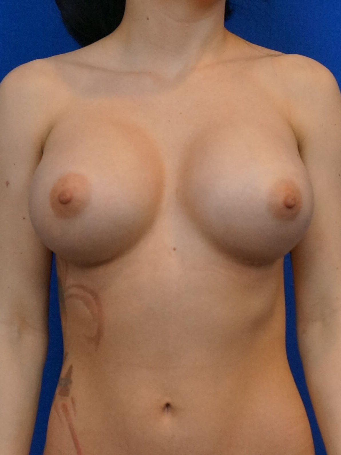 Breast Implant Revision After