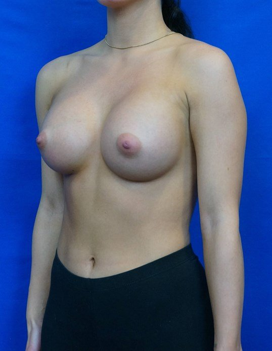 Breast Implants Las Vegas After