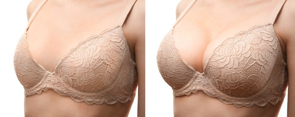 Before and After Breasts Photo