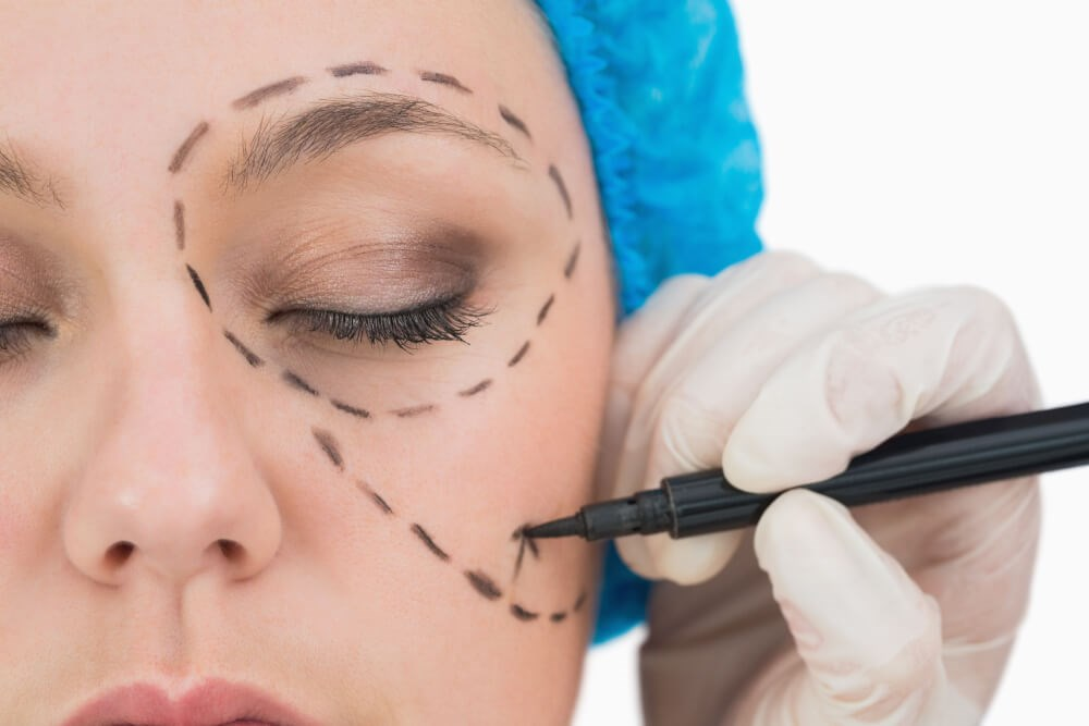 Surgical Pen on Face Photo