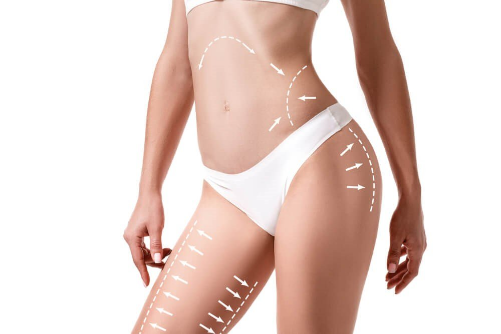 Everything You Need To Know About High Definition Liposuction in Las Vegas  Everything You Need to Know About High Definition Liposuction