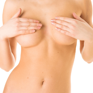 Breast Asymmetry Image